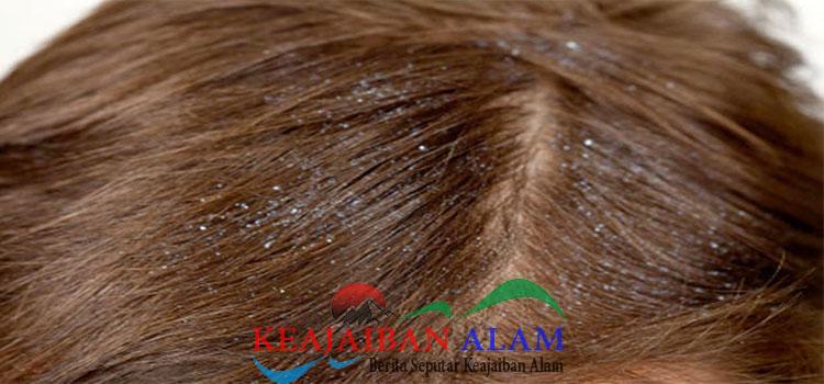 Cara Ampuh Untuk Membersihkan Ketombe Pada Rambut Anda