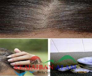 Obat Herbal Ini Akan Membuat Pertumbuhan Rambut Anda