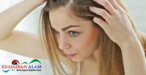 Yuk Simak Cara Tepat Hilangkan Ketombe dan Rambut Rontok Dengan Bahan Alami Berikut