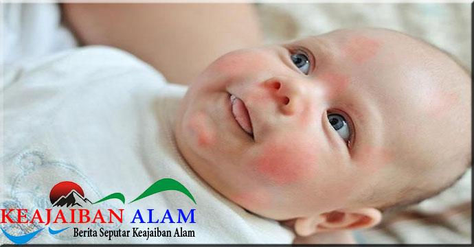 Penyebab Munculnya Alergi pada Anak Usia Dini
