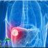 4 Cara Sederhana untuk Menjaga Kesehatan Hati